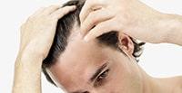 заболевания волосистой части головы