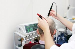электростимуляция против выпадения волос