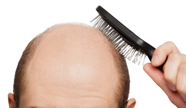 почему у мужчин выпадают волосы
