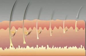 постепенное выпадение волос
